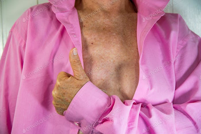 Senior woman's thumbs up in front of a partially opened pink shirt reveling mastectomy of one breast