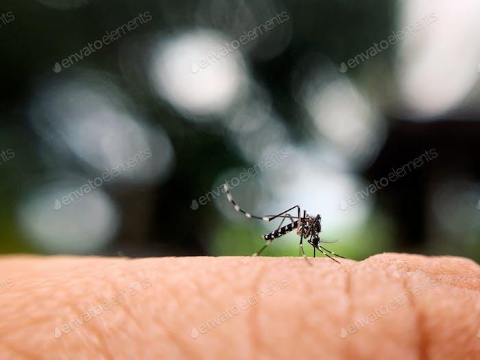 Mosquito bites on hand.