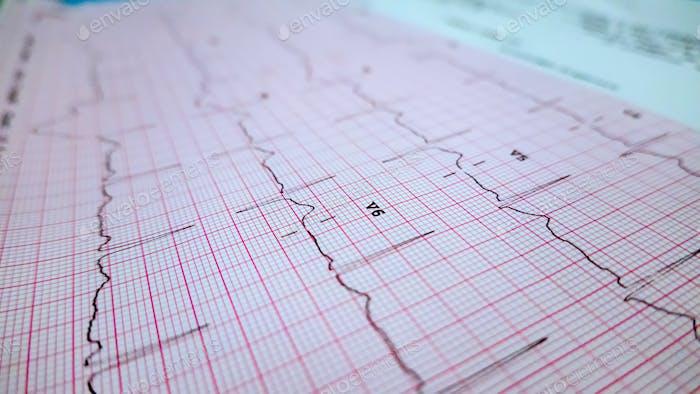 Heart rate radiology graph data sheet