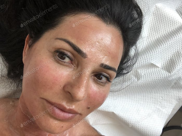 Skin care microneedling and mesotherapy for face and neck