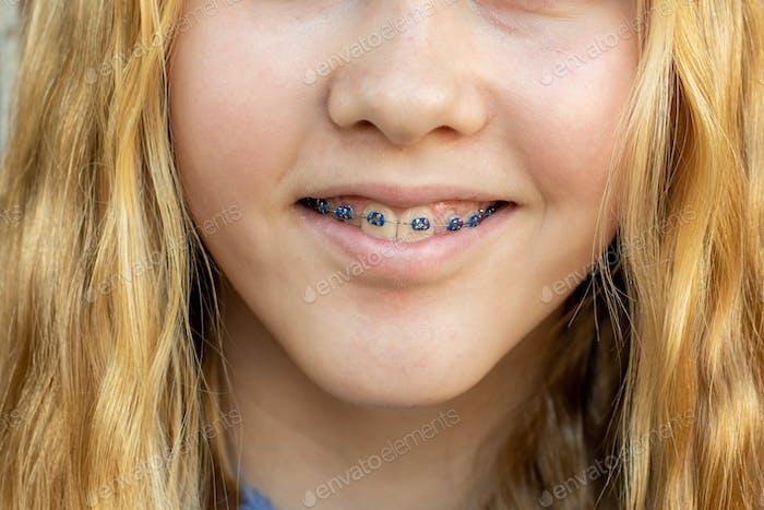 Teenage girl wearing metal braces. Orthodontic dental braces teeth straighteners