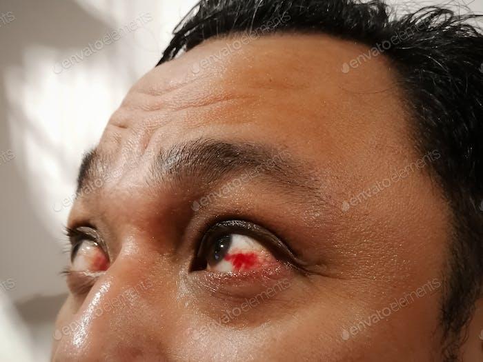 Bloodshot eye. Asian man with burst blood vessel in eye. Very red bloody eyeball.