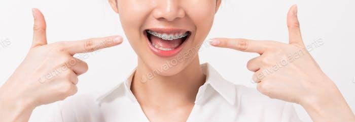 Gesicht einer jungen lächelnden asiatischen Frau mit Zahnspangen auf den Zähnen, Kieferorthopädische Behandlung.