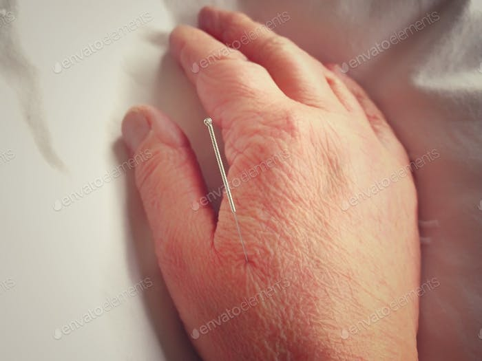 Acupuncture needle in hand