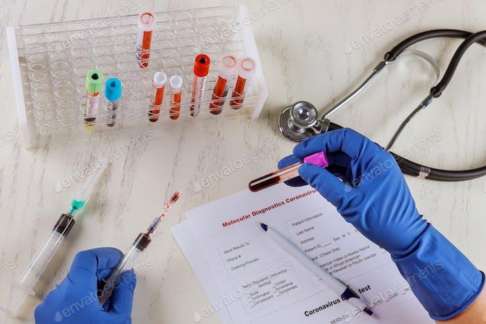2019-nCoV atypical pneumonia virus coronavirus with blood sample