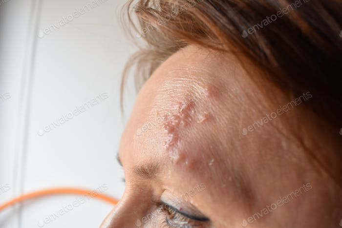 Herpes zoster riactivation in facial nerve