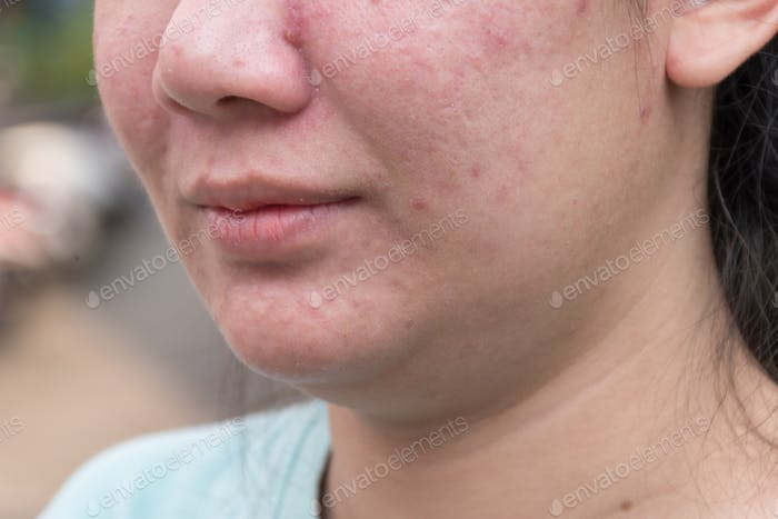 Acne and skin care concept. Young asian woman with pimple