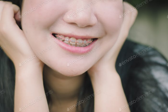 Feliz sonrisa de mujer joven con aparatos dentales
