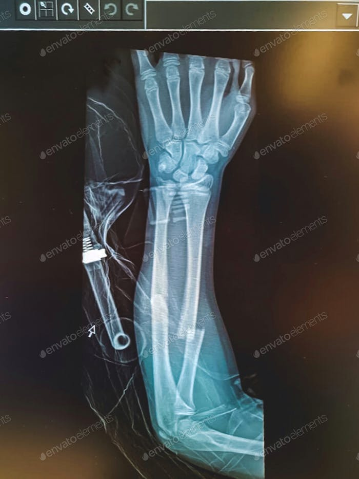 xray of a fractured arm, medical, injury, orthopaedic