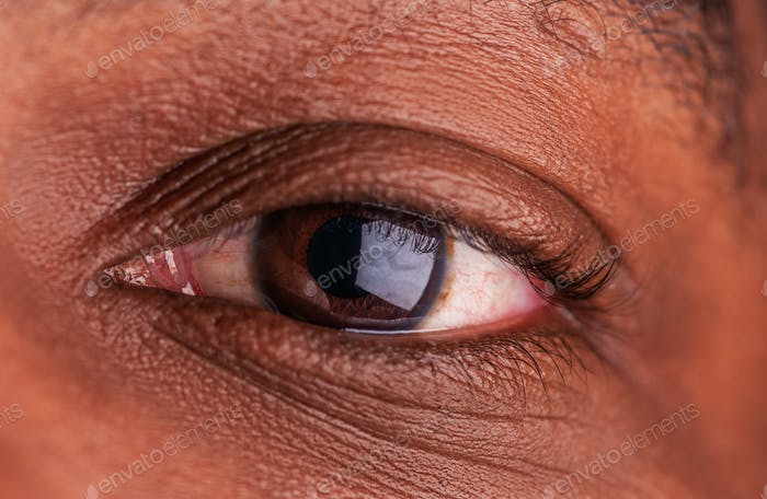 Laser eye surgery concept, cataract surgery, lasik surgery, African American man, diverse