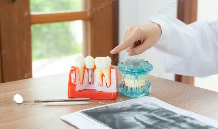 Zahnarzt mit Zahnimplantat-Modell.