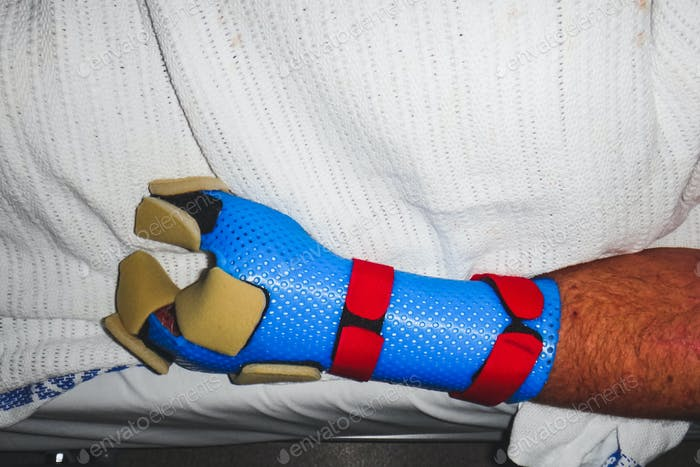 close up of human hand in recovery post trauma and amputation, amputee, disability