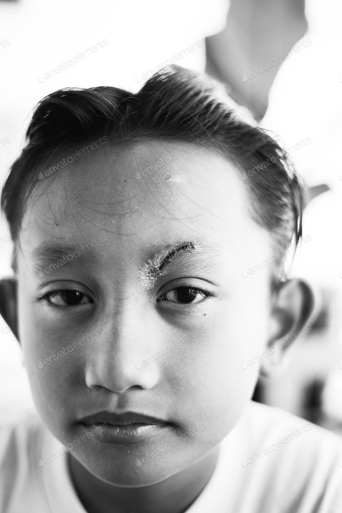 Healed minor cut wound after the surgical glue stitches.  Scar at left eyebrow of Southeast Asian,