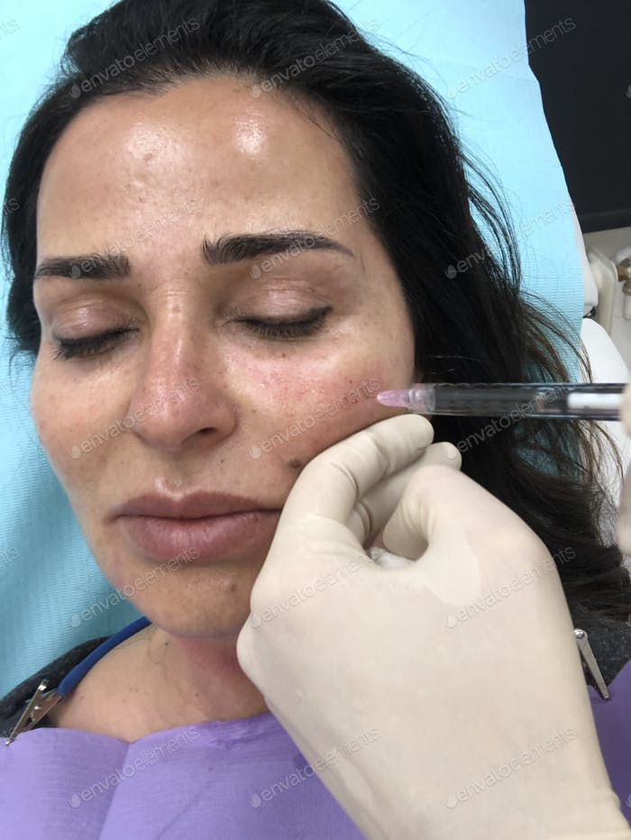 Mesotherapy using hyaluronic acid face and neck