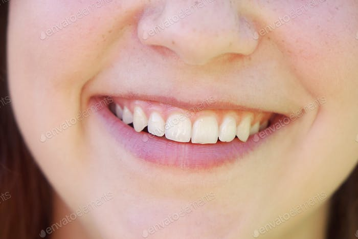 young woman with toothy smile and perfect white teeth