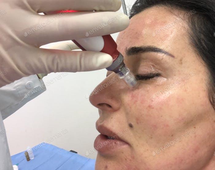 Micro-needling skin rejuvenation