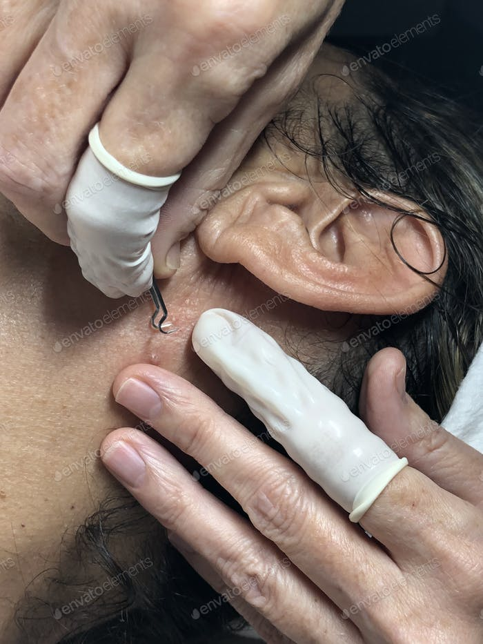 Woman's health, esthetician performing an extraction of an ingrown hair.