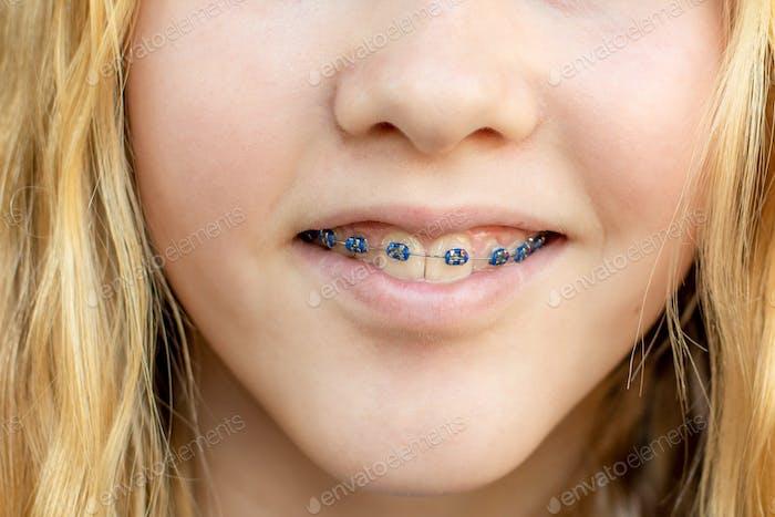 Close up of a teenage girl wearing metal braces. Orthodontic dental braces teeth straighteners