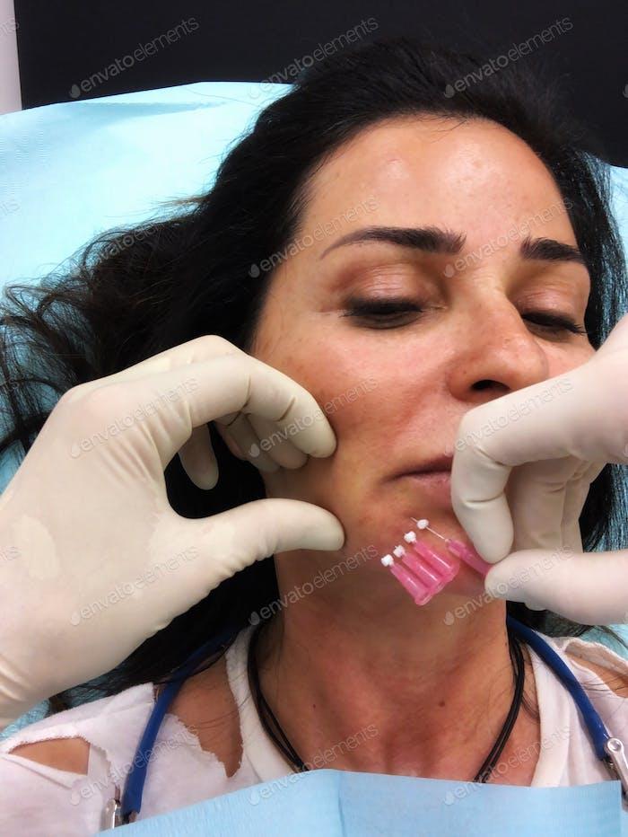 Plastic surgery pdo threads non invasive aesthetics