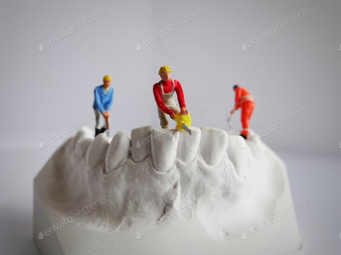 Miniature people on a dental impression in plaster