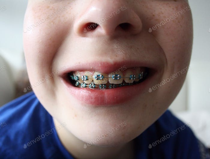Young boy smile with mouth open. His teeth are with braces.