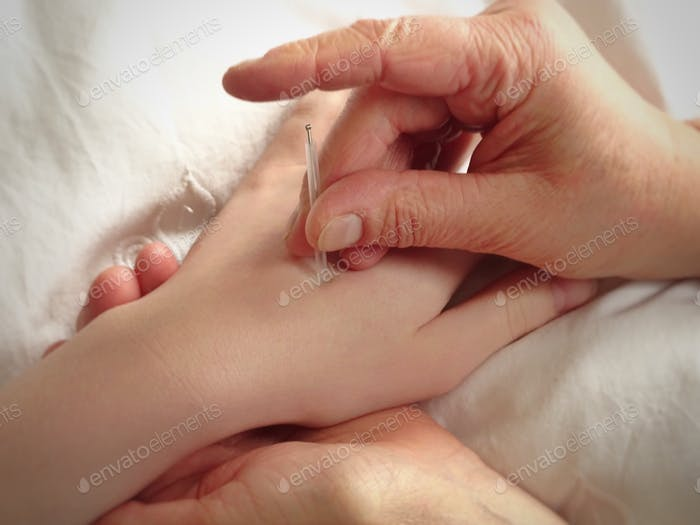 Acupuncturist putting needle in a hand of a patient