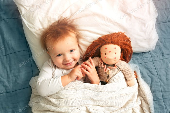 Girl child and a doll lie in bed suffer from chickenpox, funny photo with chickenpox, top view, ligh