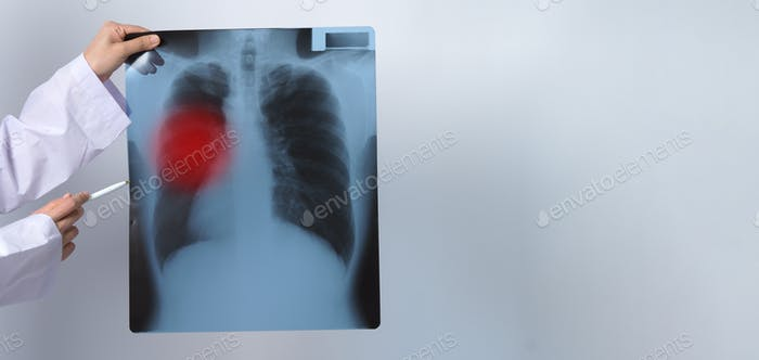 Asia woman doctor holding and checking up lung's x-ray film or radiograph from coronavirus pandemic.